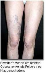 Vibrieren Im Bein