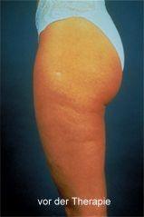 schwere-beine-was-tun-gegen-orangenhaut-Ce