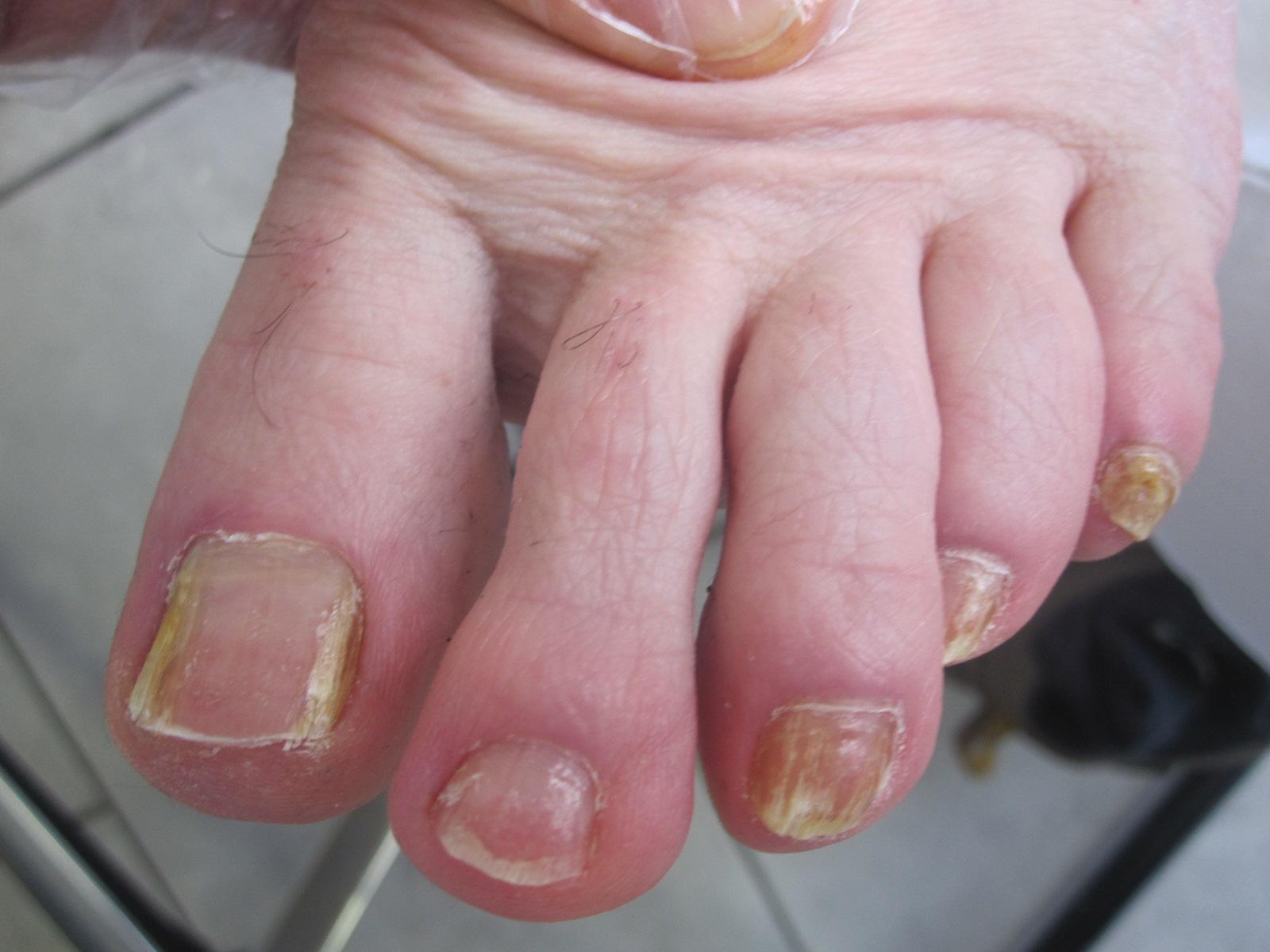 Die Behandlung der Nägel kaluga
